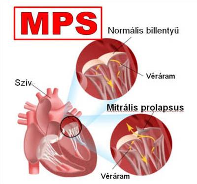 mitralis_prolapsus_szivbillentyu_szivbetegseg